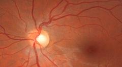 Imagen de retina - Programa OPT